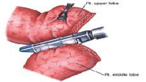 Separation of interlobar fissure